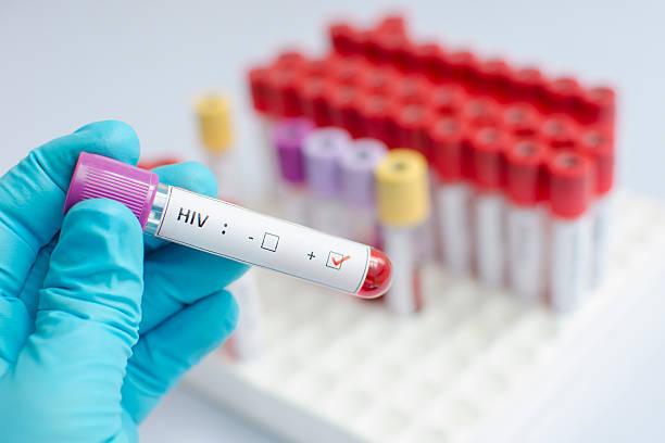 hiv symptomen